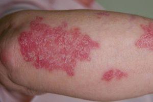 ĐẶC ĐIỂM LÂM SÀNG VÀ CẬN LÂM SÀNG của bệnh vẩy nến