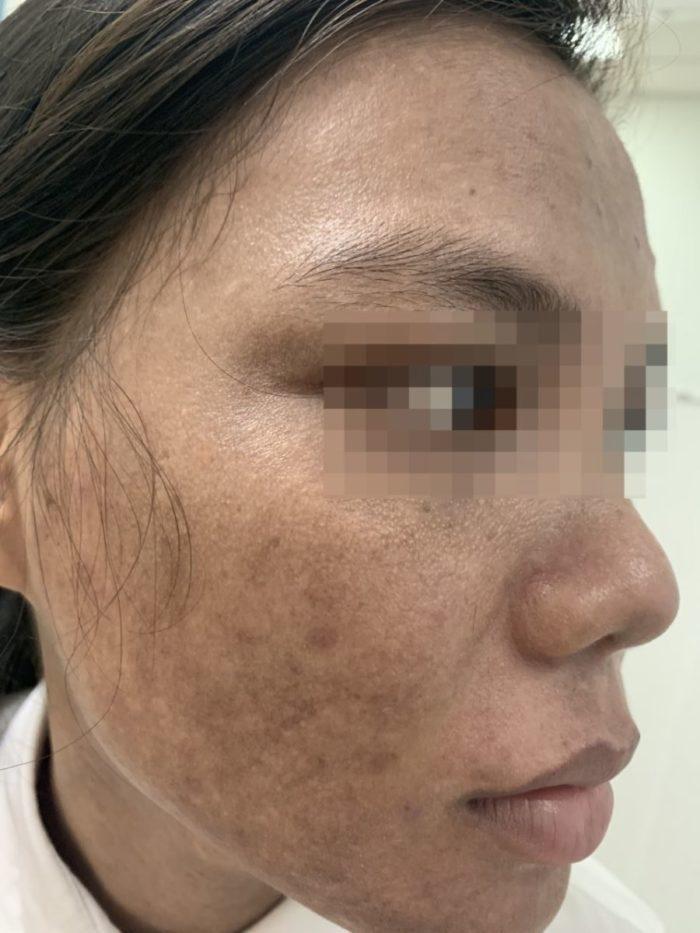 Bệnh nám da do sử dụng kem trộn mỹ phẩm trôi nổi