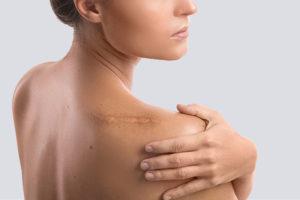 các phương pháp điều trị sẹo lồii