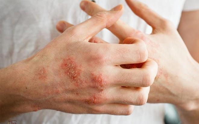 thuốc chữa bệnh eczema bằng thuốc nam